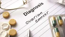 Gulftimes Ovarian Cancer Is Hard To Detect